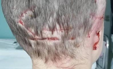 Una niña de cinco años pierde una oreja tras el ataque de un perro en Asturias