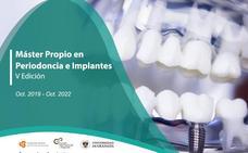 Periodoncia e implantes, una especialización de prestigio en la Universidad de Granada
