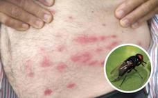 Cómo afecta a la salud la mordedura de la mosca negra: sangre y picor durante días