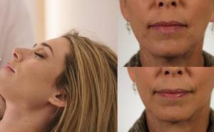 Ácido hialurónico número 1 en Granada para decir adiós a las arrugas faciales y conseguir más luminosidad