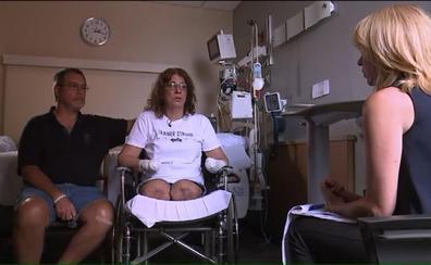 Amputan las manos y las piernas a una mujer tras infectarse por un lametón de su perro