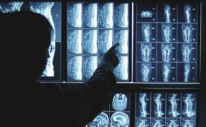 ¿Qué es la hipofosfatasia? Los síntomas de la enfermedad que podrían tener 15.000 españoles sin saberlo