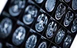 Gobierno y autonomías aprueban el primer plan nacional contra el alzhéimer
