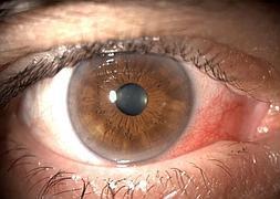 infección ocular por protector solar