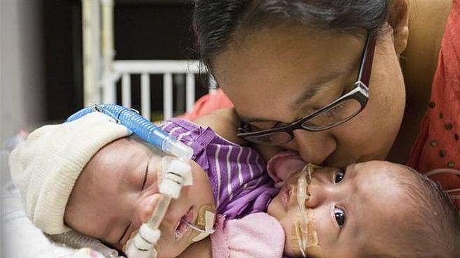 Separadas unas siamesas de 10 meses unidas por el pecho tras 26 horas de operación