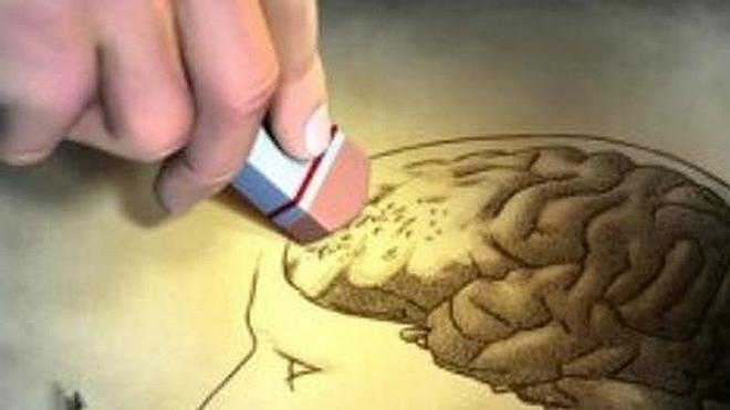 El alzhéimer puede empezar a desarrollarse a los 30 años
