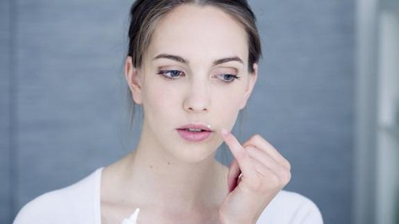 tratamiento natural para el herpes facial