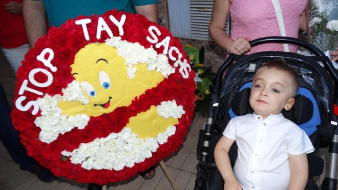 Muere Sergio Roque, el niño que padecía una enfermedad rara y desató una ola de solidaridad