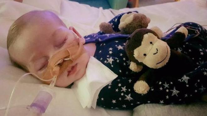 """La lucha desesperada de los padres de Charlie: quieren que siga vivo y los médicos piden una """"muerte digna"""""""