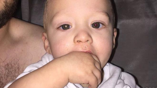 Un padre descubre que su bebé tiene un tumor al ver esta foto