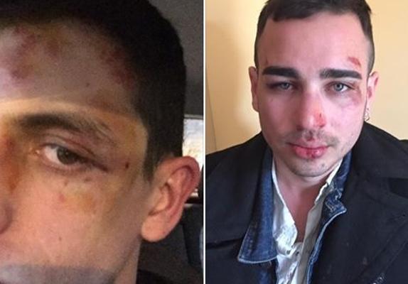 Chico golpeado por ser homosexual
